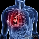 Comment lung cancer