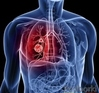News lung cancer